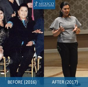 Dr. Louisiana Valenzuela before and after photos, gastric sleeve surgery in Tijuana, Mexico