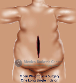 Bariatric Surgery Options [Comparison Table]: Full Patient's Guide