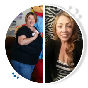 weight loss surgery success, image 3