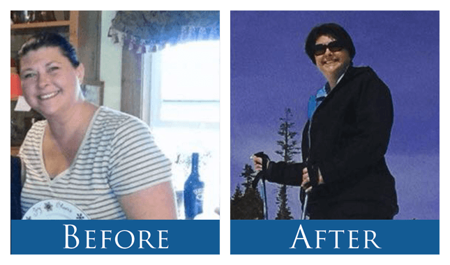 Gastric Sleeve Success Stories*, Before & After Photos