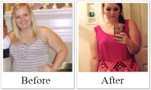 Before and After Lauren, gastric sleeve success