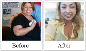 Before_After SBS - Rosy, gastric sleeve success
