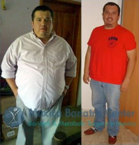 Dr. Cisnores patient before after